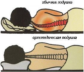 Сон в неправильном положении напрягает спину, является причиной головных болей и вялости.