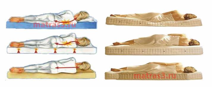 Подбор матраса при болях в спине и болезнях позвоночника Уфа